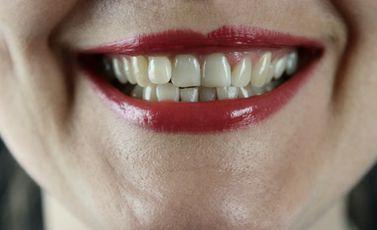 أسنان - CC0