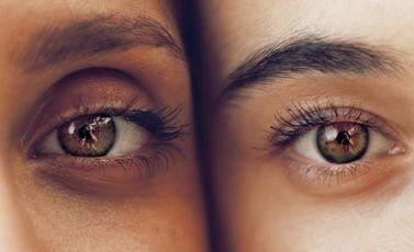 عين - CC0